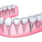 lemont dental services
